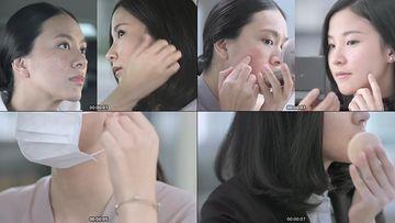 面部痤疮的女人视频素材