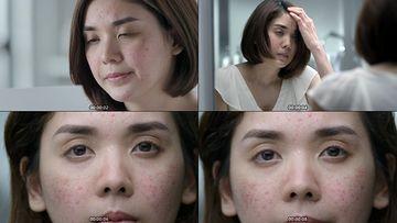 皮肤缺水视频素材