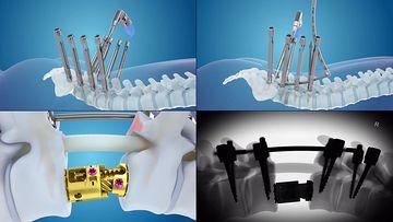 骨髓移植颈椎矫正视频素材